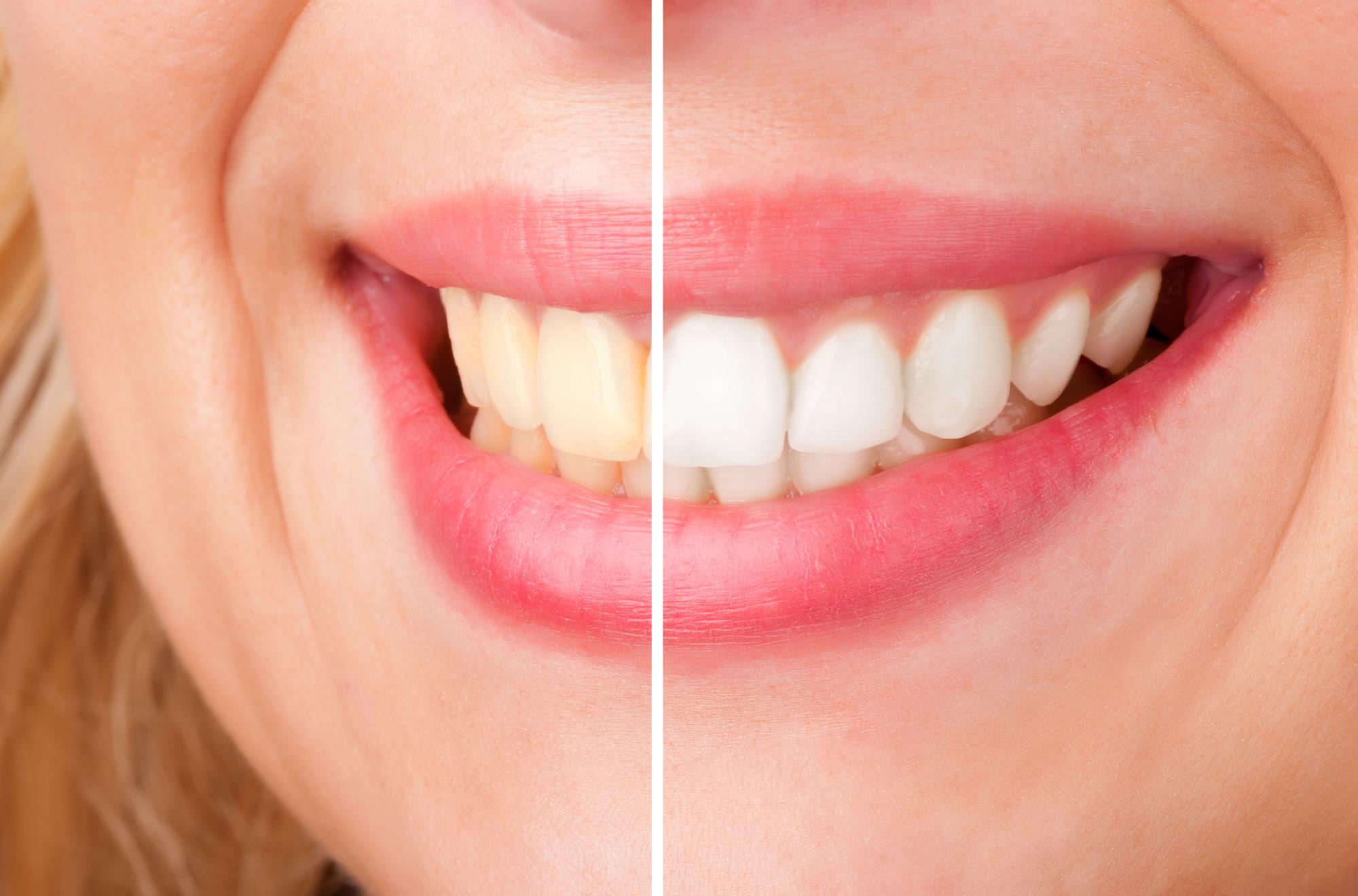 Misfargins av tennene
